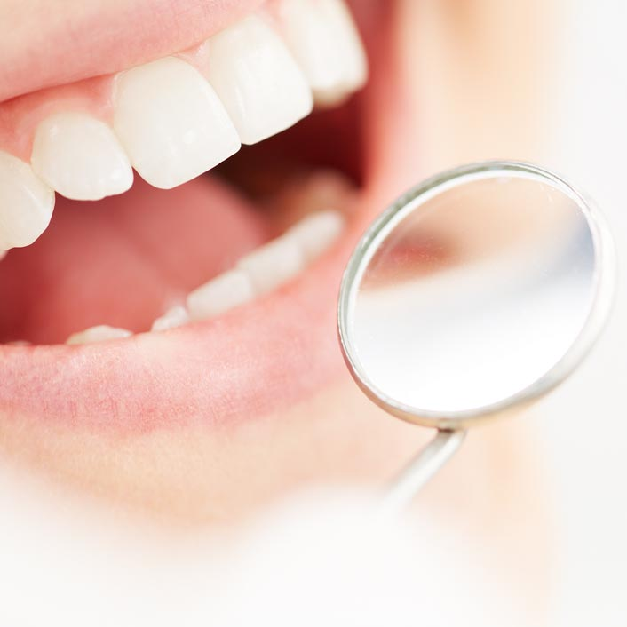 Dental Cleaning - Dental Services